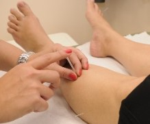 Berry AL physical therapist applying acupuncture to patient